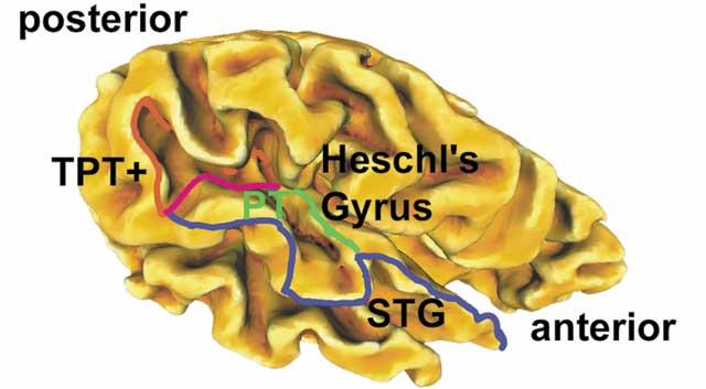 heschls gyrus